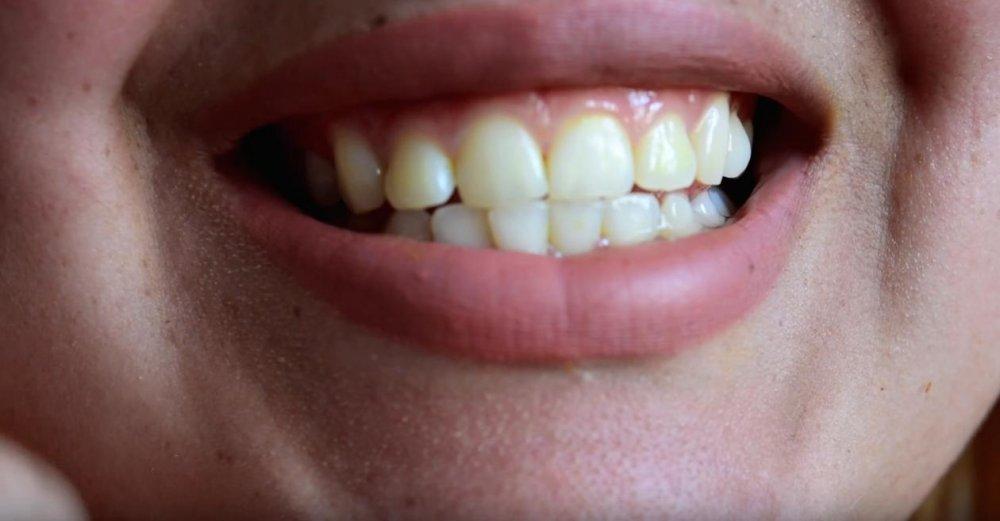 безопасное отбеливание зубов в стоматологии способы